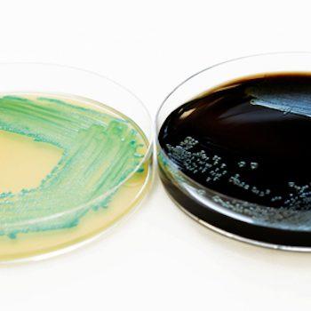 Rapid-method-Listeria-BAV-Institut